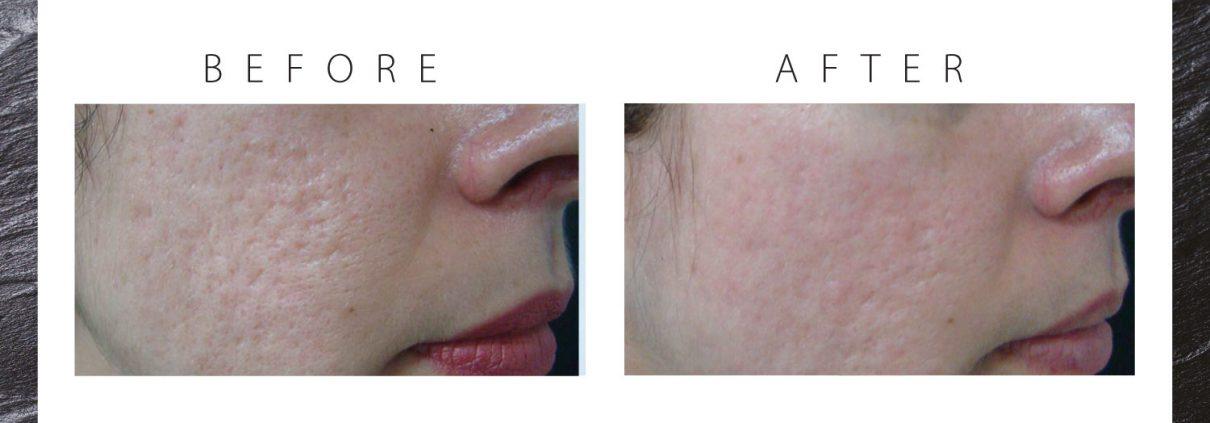 jlc-jasmine-laser-clinics-amsterdam-laserbehandelingen-acne-verwijderen-verbeteren