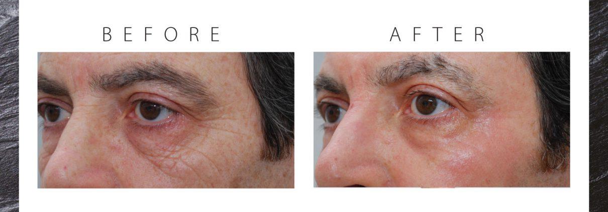 jlc-jasmine-laser-clinics-amsterdam-laserbehandelingen-ooglid-verstrakking