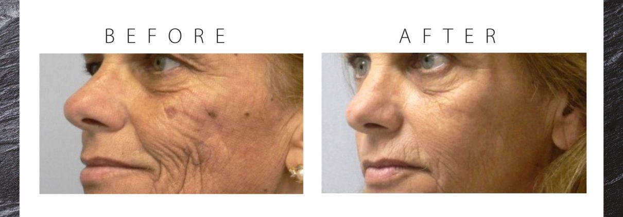 jlc-jasmine-laser-clinics-amsterdam-laserbehandelingen-huidverbetering