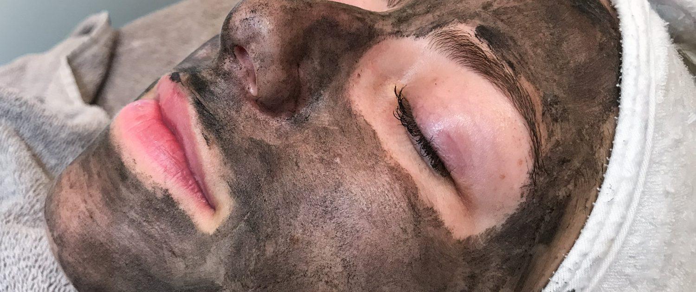carbon-laser-peel-amsterdam-huidverjonging-jasmine-laser-clinics