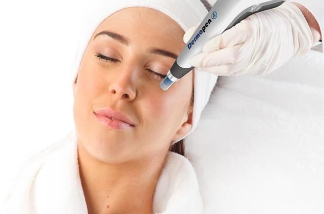 behandeling-dermapen-microneedling-amsterdam-huidverjonging-jasmine-laser-clinics